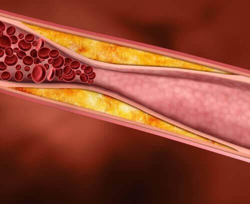 Υψηλή χοληστερίνη