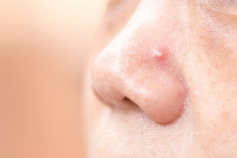 4 σπιτικές θεραπείες για να ξεφορτωθείτε τα σπυράκια στη μύτη!