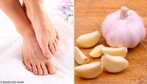 Νύχια που μπαίνουν στο δέρμα: χρησιμοποιήστε λιωμένο σκόρδο