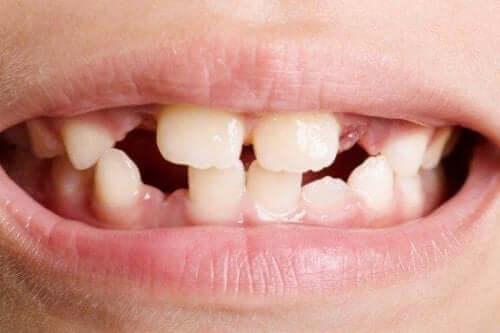 Οδοντική αγενεσία: Τύποι και τρόποι αντιμετώπισης