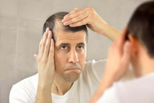 Άνδρας με αλωπεκία κοιτάζεται στον καθρέφτη