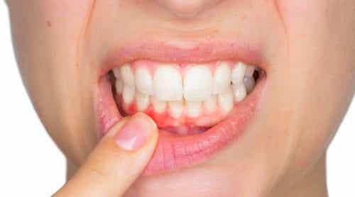Πώς να αντιμετωπίσετε τα οδοντικά αποστήματα