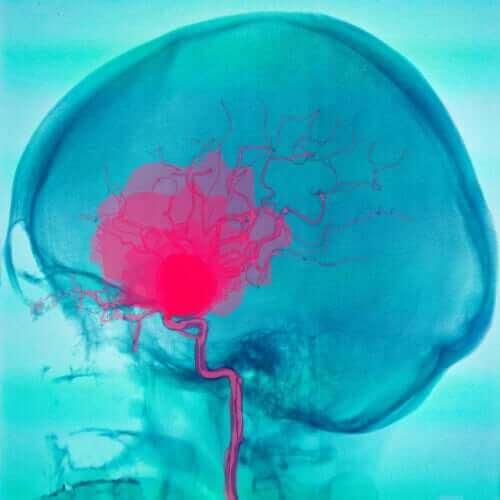 Ακτινογραφία εγκεφάλου