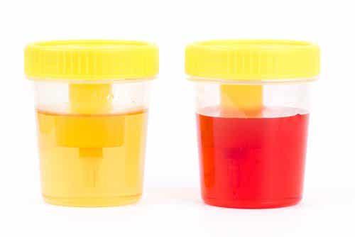Όσα πρέπει να γνωρίζετε για την αιματουρία: Συμπτώματα και αιτίες