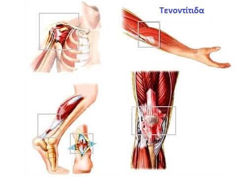 Αναπαράσταση τενοντίτιδας
