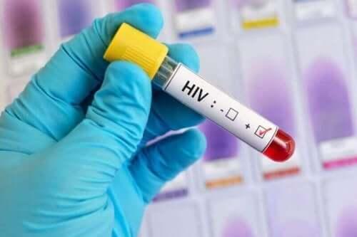Δείγμα αίματος για HIV