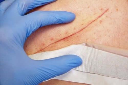 Βασικές τεχνικές για το κλείσιμο μιας πληγής