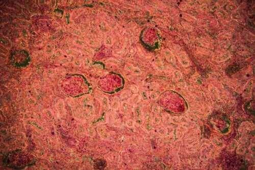 Φυματίωση νεφρού: Διάγνωση και αντιμετώπιση