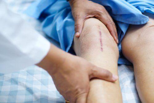 Ανάρρωση μετά από μια μεταμόσχευση γονάτου