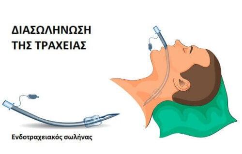 Ασθενής με ενδοτραχειακό σωλήνα