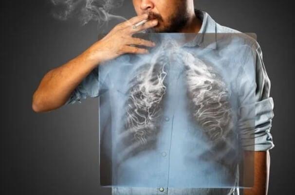 Κάπνισμα και καρκίνος του πνεύμονα