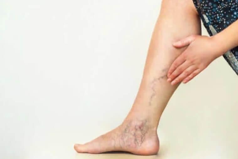 κιρσοί στα πόδια
