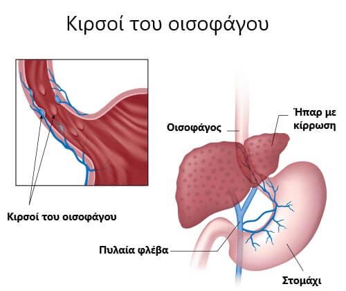 Κιρσοί του οισοφάγου: Σημάδια και συμπτώματα