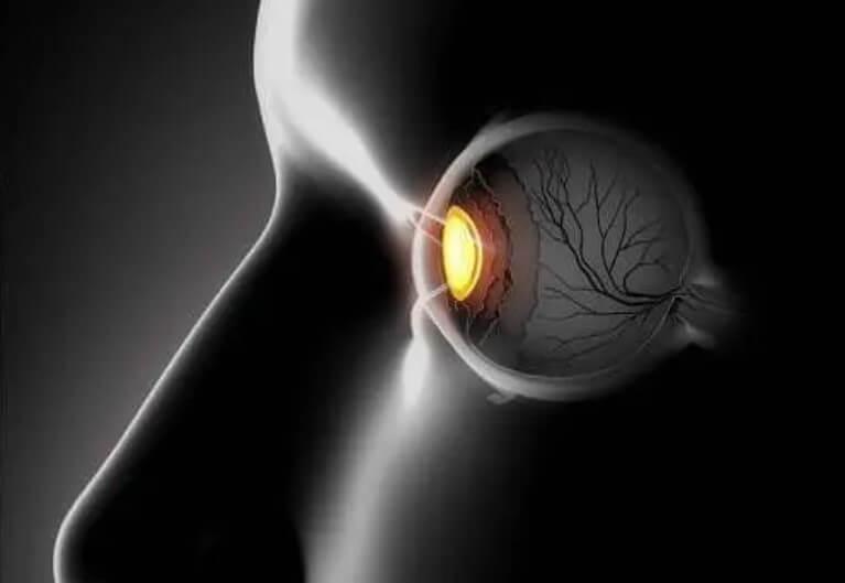 Αλλήθωρα μάτια: Συμπτώματα και θεραπείες