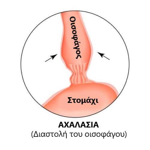 Διάγραμμα αχαλασίας του οισοφάγου