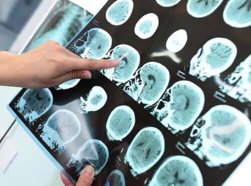 Τι είναι η μείζων νευρογνωστική διαταραχή (Άνοια);