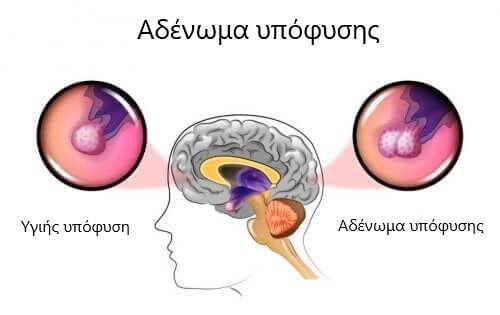 Αδενώματα της υπόφυσης: Αίτια και συμπτώματα