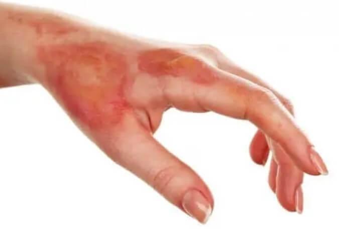 Επιφανειακό έγκαυμα στο χέρι