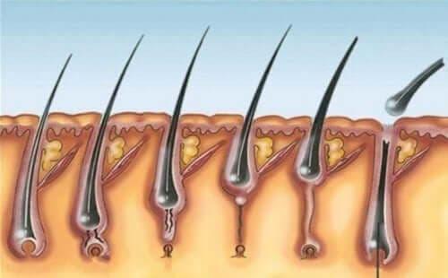Τι είναι το σύνδρομο πολλαπλών τριχοεπιθηλιωμάτων