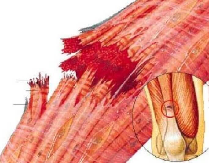 θλάση μυών