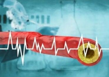 Πώς να διατηρήσετε τη χοληστερόλη σταθερή με διατροφή