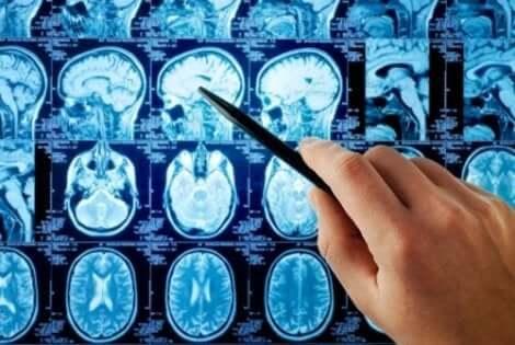 Αξονικές τομογραφίες εγκεφάλου