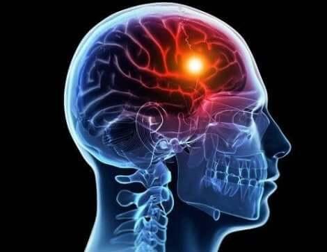 Γραφική απεικόνιση εγκεφάλου