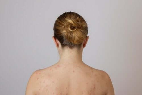 Γυναίκα με λιπώματα στην πλάτη