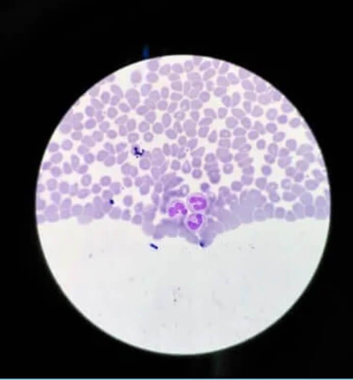 Ακοκκιοκυττάρωση: Συμπτώματα και θεραπείες