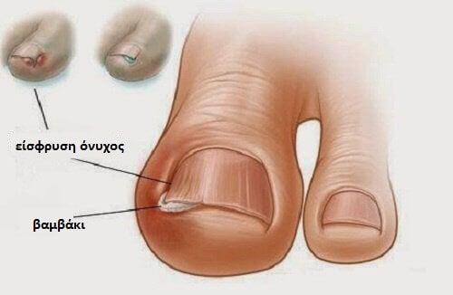 Πώς να κόβετε τα νύχια για να αποφεύγετε την είσφρυση όνυχος