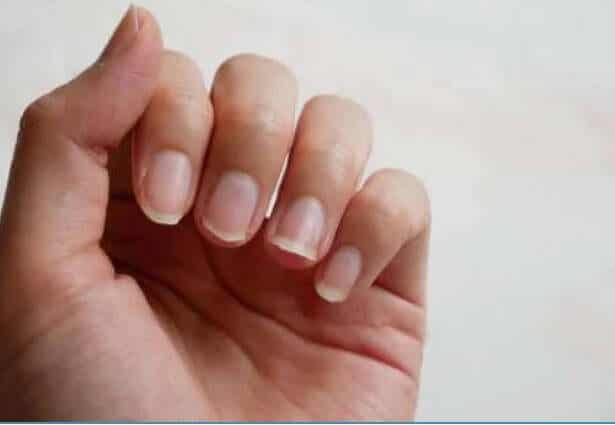 Φυσικά συστατικά για τη θεραπεία των εύθραυστων νυχιών