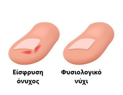 Σύγκριση δαχτύλων