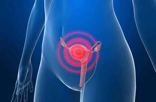 Θεραπεία του καρκίνου του ενδομητρίου μετά τη διάγνωση