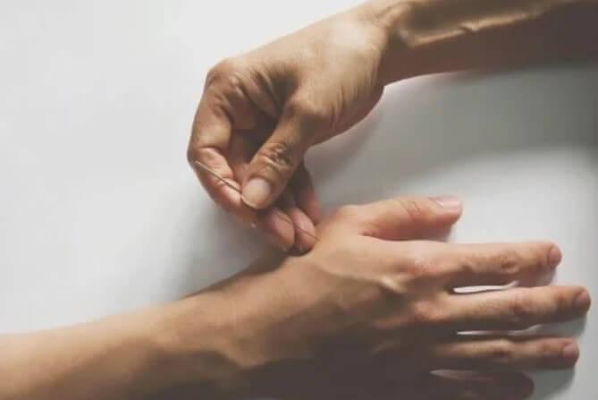 βελονισμός σε χέρι