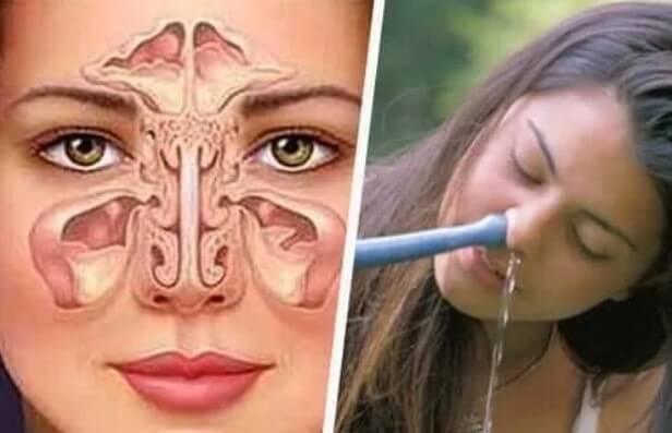 Πλύση με νέτι σε βουλωμένη μύτη