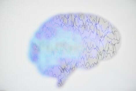 Απεικόνιση εγκεφαλογραφήματος