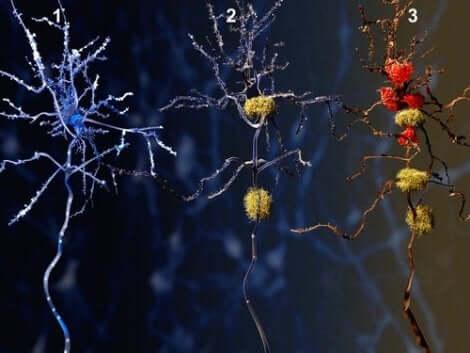 Απεικόνιση των φάσεων του Αλτσχάιμερ