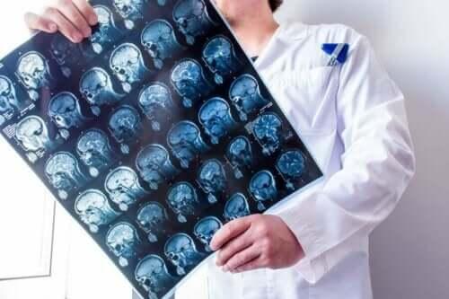 Γιατρός κρατά σπινθηρογράφημα εγκεφάλου