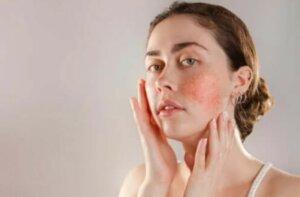 Αντιδραστικό δέρμα: Συμπτώματα, αιτίες, θεραπεία