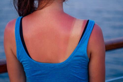 Γυναίκα με ηλιακό έγκαυμα στην πλάτη