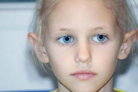 Κοριτσάκι με ρετινοβλάστωμα