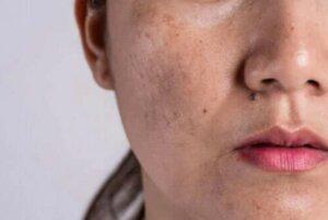 Αιτίες και θεραπεία για τον αποχρωματισμό του δέρματος