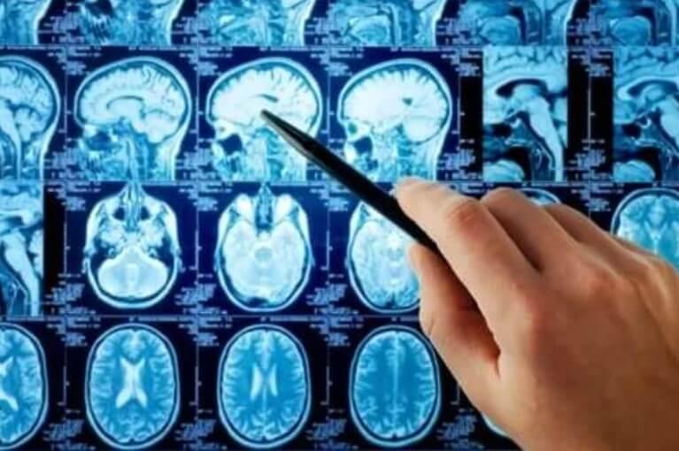 Μετάσταση εγκεφάλου