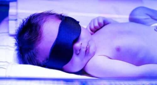 Μωρό σε θάλαμο φωτοθεραπείας