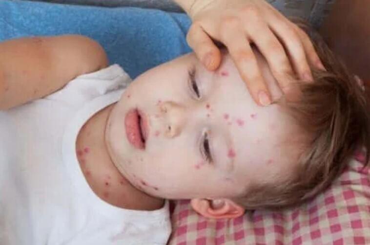 Πώς να θεραπεύσετε την κνίδωση στα παιδιά