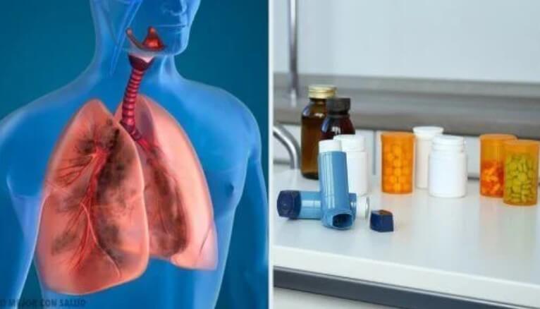 Χάπια και πνεύμονες