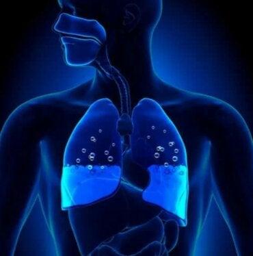 Πνευμονικό οίδημα: Συμπτώματα και αιτίες