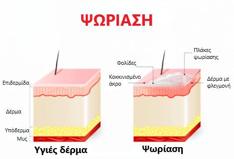 Απεικόνιση της ψωρίασης