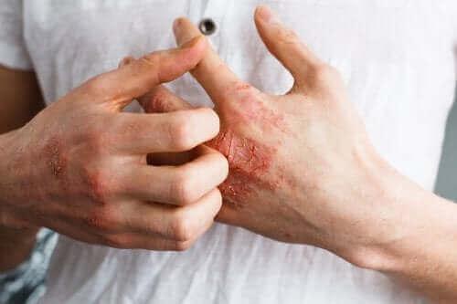 Εσείς γνωρίζετε τι είναι η ατοπική δερματίτιδα;