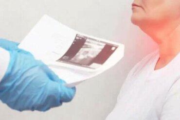 Οζίδια του θυρεοειδή: Συμπτώματα και αιτίες